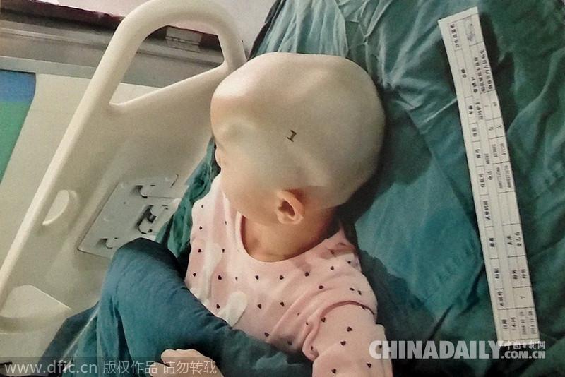女孩现在沈阳中国医科大学盛京医院治疗,当事教师已被停职.