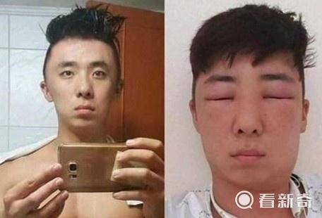 新锦江娱乐现场赌博:帅小伙脸肿变形眼睛睁不开 似外星人